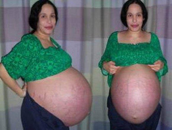 Как увеличить грудь дома в 13 лет