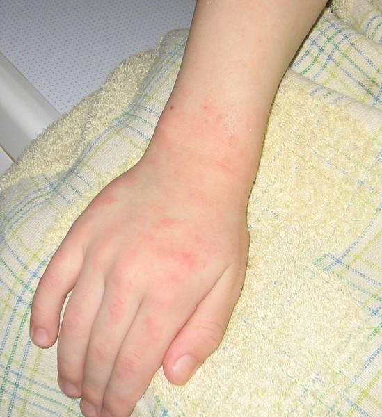сколько держатся пятна от аллергии