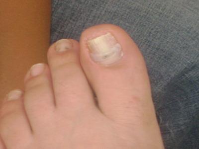 Отзывы о клотримазол от грибка ногтей