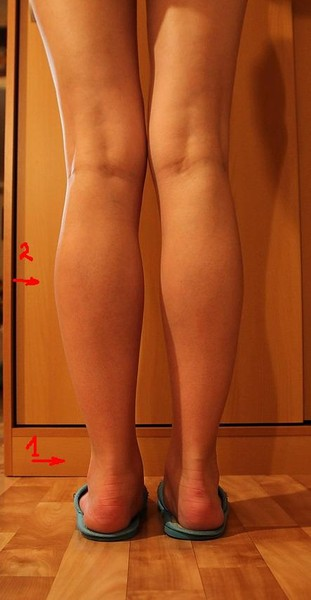 От чего болят икры на ногах у ребенка