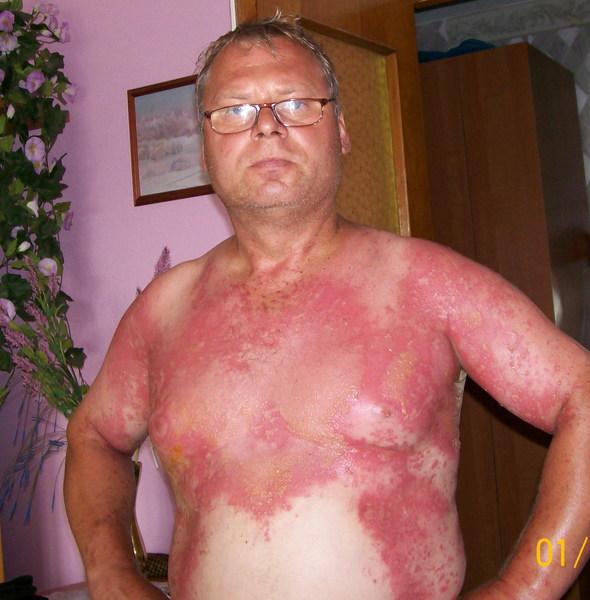 ожоги на руках от травы Лечение экземы на руке - травы+диета (личный опыт)