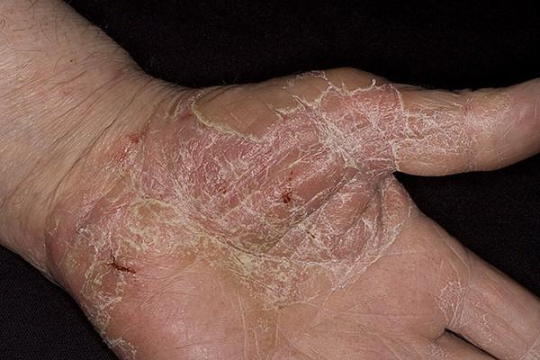 паразиты на ладони человека фото