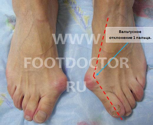 Как избавиться от косточек на ногах  Способы лечения