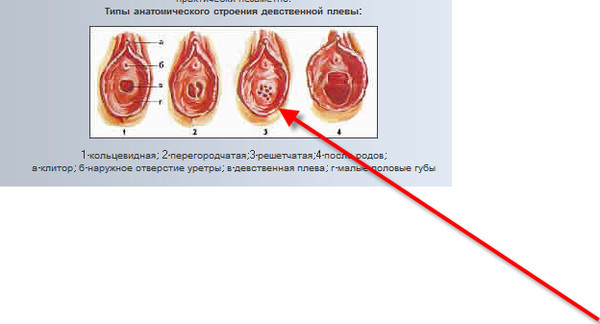 ginekolog-kak-lishayut-arabskih-devchonok