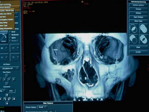 RRC Inc. provides the highest quality radiology reporting and a full