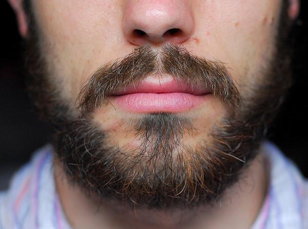 Темные волосы на бороде