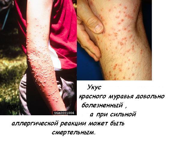 Ответы@mail ru какой вред приносит укус